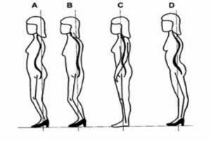 body postural alig.