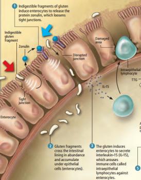 celiac-disease-IEL-pathology