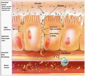 leaky-cells