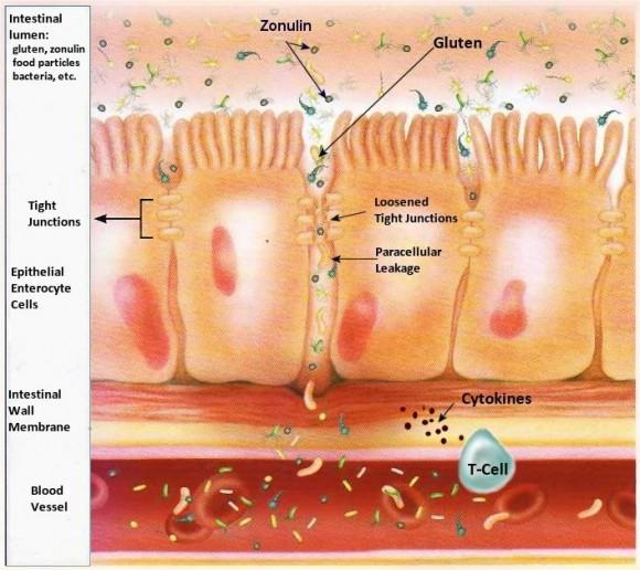 tyndtarm og tyktarm